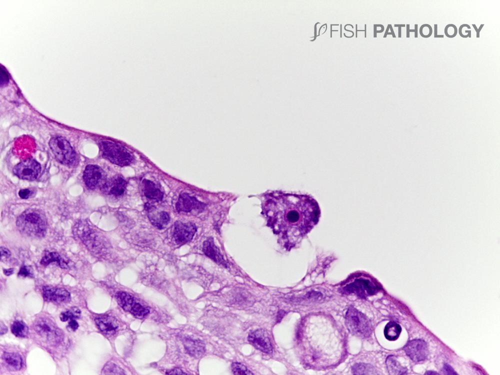 Freshwater Amoebiasis - Histopathology