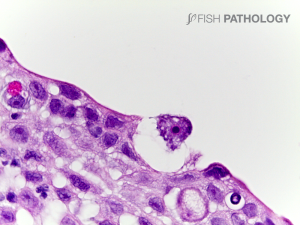 Freshwater Amoebiasis