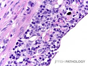 Atlantic salmon, heart, with severe diffuse epicarditis, H&E.