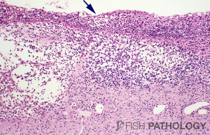 """Figure 2. Compare and contrast this example of severe dermatitis with Figure 1. Although there is similarly severe inflammation, and loss of scales, the epidermis is involved to the same extent as the dermis, and there are many more neutrophils. Within the epidermis can be seen an aggregate of neutrophils, forming a """"micro-abscess"""" (arrow)."""