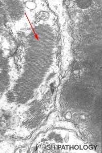 Figure 6. Transmission electron micrograph of heart from salmon with early-stage CMS to show the junction between 3 myocardial cells. The cells on the left and at the bottom show still-viable myofibrils (arrow), while in the cell on the right, the myofibrils have lost all structure.